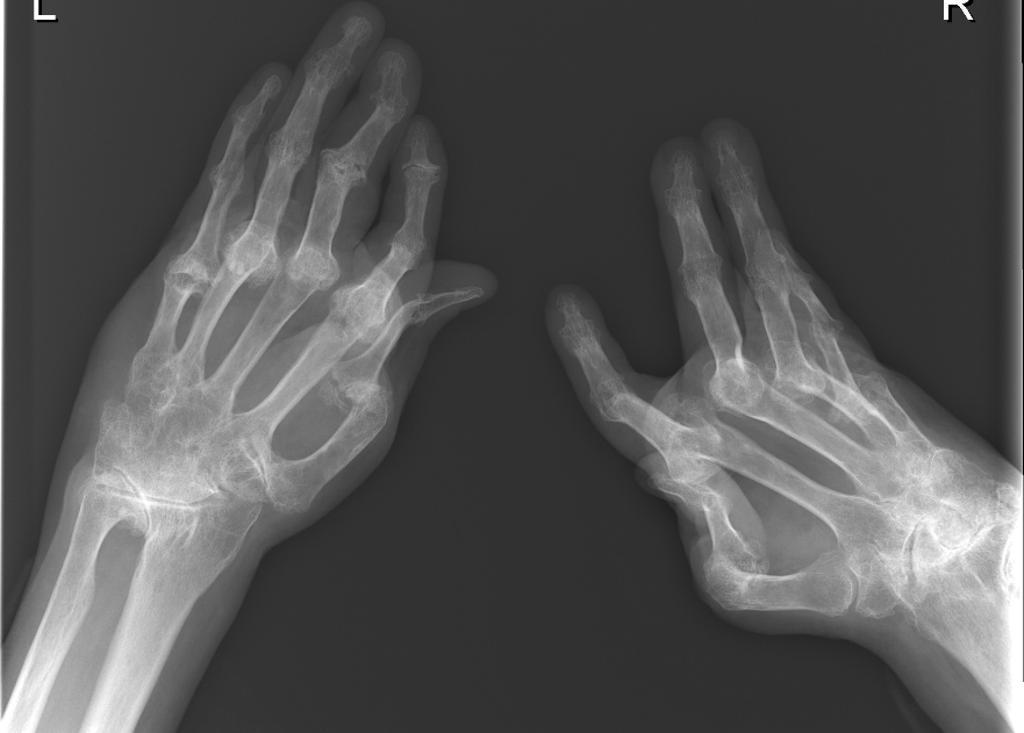 Opera glass hands (la main en lorgnette)