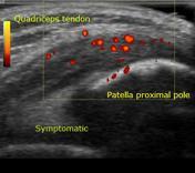 Symptomatic tendo...
