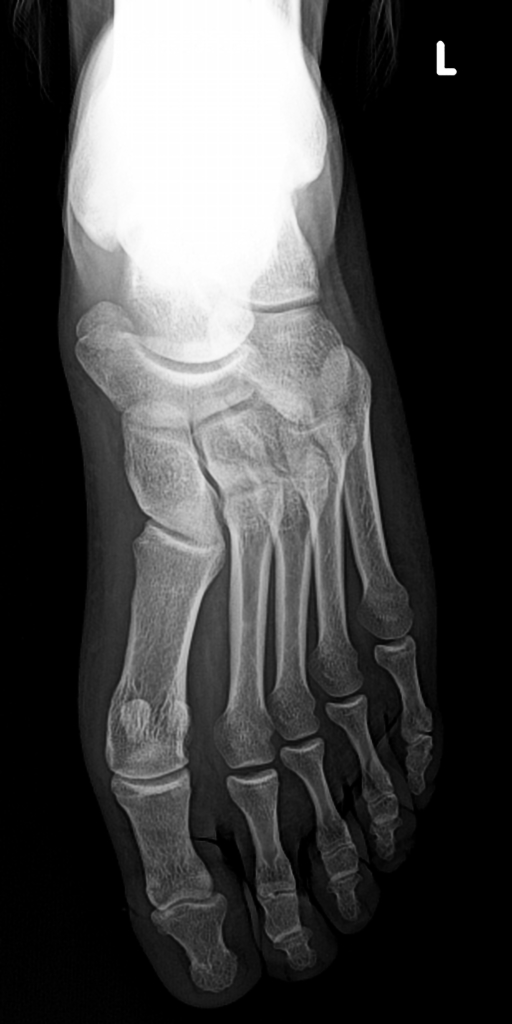 Accessory Navicular Syndrome Radiology Case Radiopaedia Org The accessory navicular was first described in 1605 by bauhin. accessory navicular syndrome