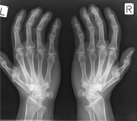 Heberden csomók, Heberden arthrósis - Súlypont Ízületklinika