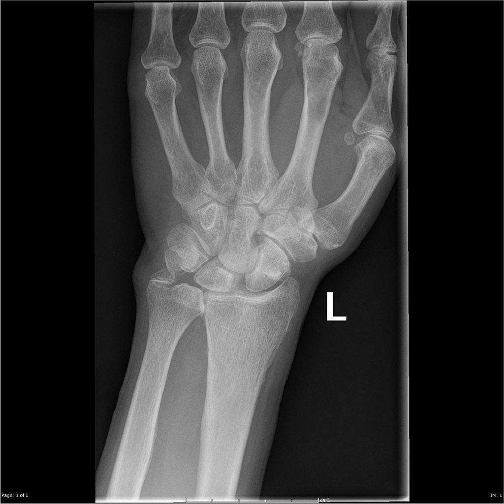 Cartilage and Ligament Tears of the Wrist | 1024x1024