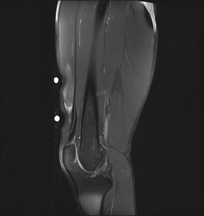 Rectus Femoris Injury Intramuscular Degloving Radiology Case Radiopaedia Org