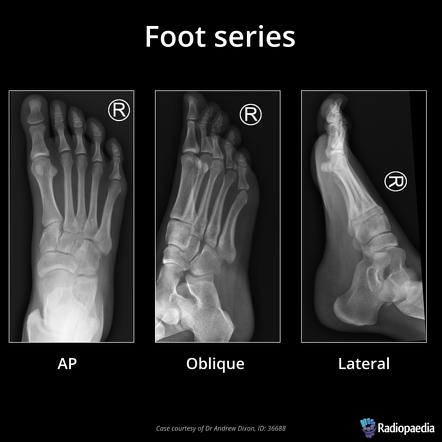 Foot Series Radiology Reference Article Radiopaedia Org