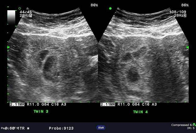 Twins when on up ultrasound show do 5 Weeks