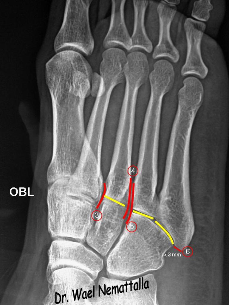 metatarsalis artrosis a 2. fokban