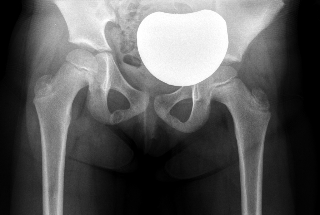 Aymmetric Ischiopubic Synchondrosis Radiology Case Radiopaedia Org The ischiopubic synchondrosis forms from two metaphyseal equivalents at the ischial and pubic bones. aymmetric ischiopubic synchondrosis