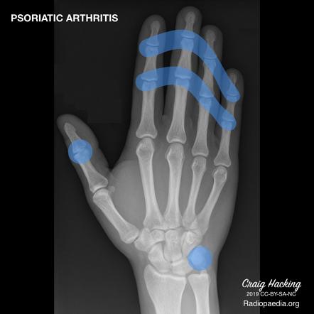 Psoriatic Arthritis Radiology Reference Article Radiopaedia Org