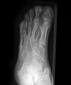 Syndactyly with t...