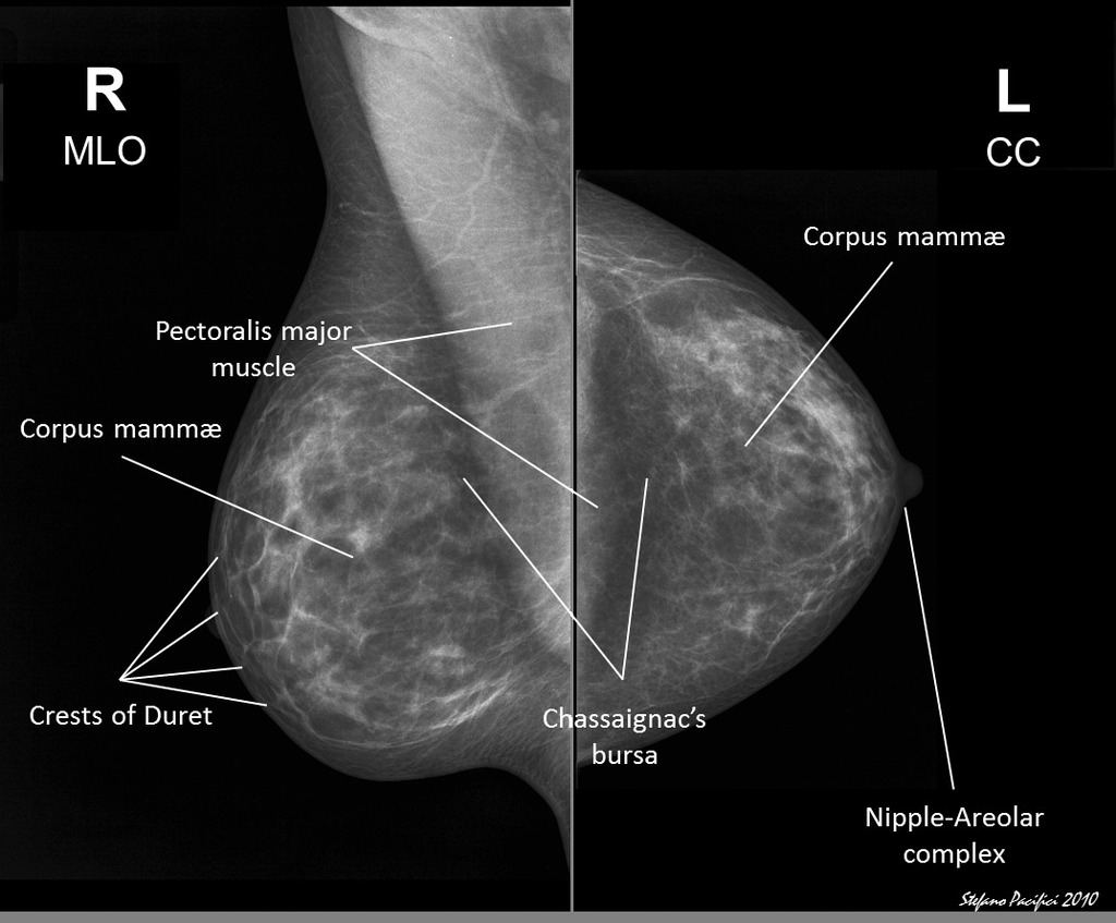 Labeled Normal Mammograms Radiology Case Radiopaedia Org
