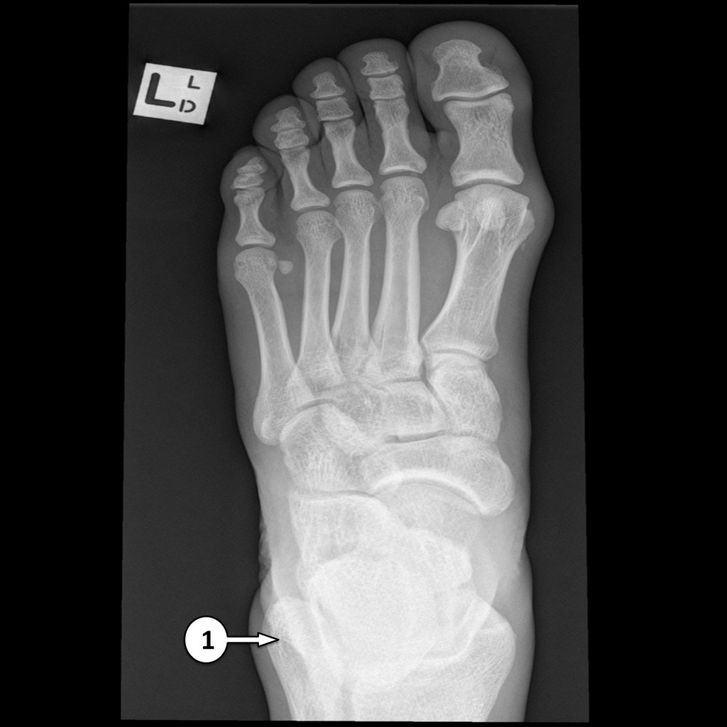 Foot X Ray Labeling Questions Radiology Case Radiopaedia Org