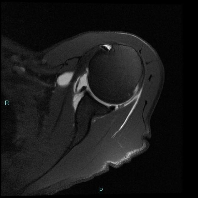 SLAP lesion - type III | Radiology Case | Radiopaedia.org