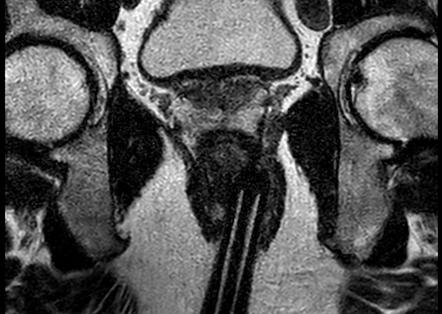 prostata pzpl pi rads 3 4 5