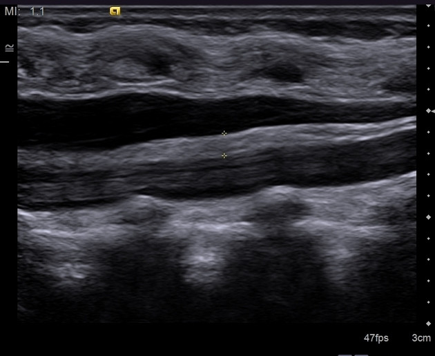 Fatty Filum Terminale Radiology Case Radiopaedia Org It is one of the modifications of pia mater. fatty filum terminale radiology case