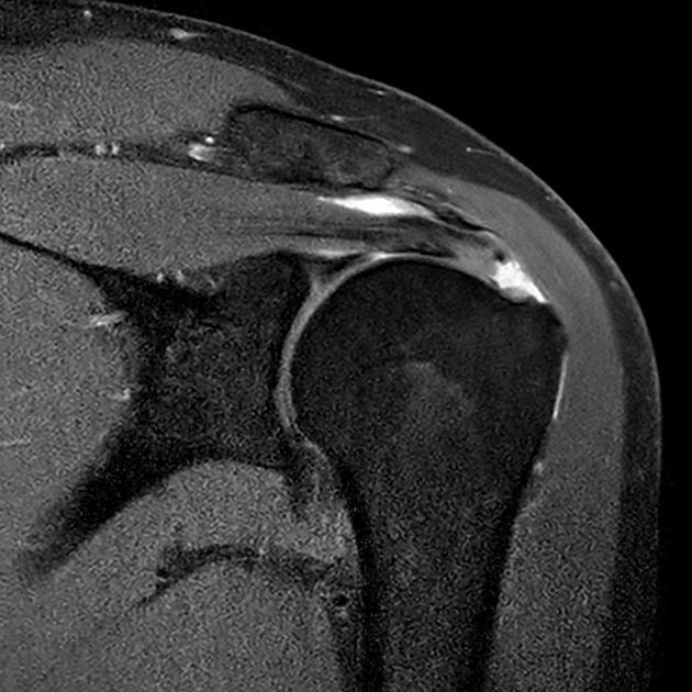 Full-thickness rotator cuff tear | Radiology Case | Radiopaedia.org