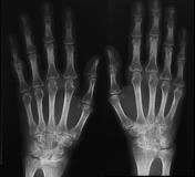 közös röntgenkép rheumatoid arthritisben)