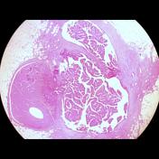 intraductal papilloma transformation