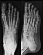 Foot Pa Oblique V...