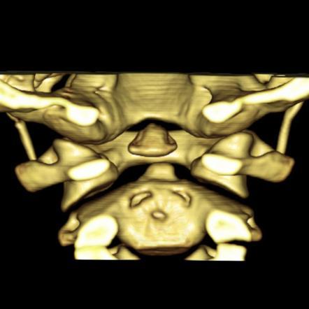 Os odontoideum (p...