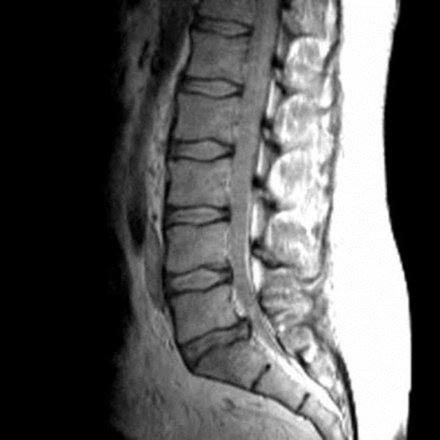 Fatty Filum Terminale Radiology Case Radiopaedia Org When a person moves the spine to stretch and bend, as happens regularly during daily activities, the abnormal. fatty filum terminale radiology case