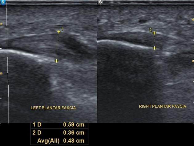 Plantar fasciitis | Radiology Case | Radiopaedia.org