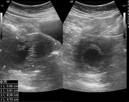 Tamoxifen Associated Endometrial Changes Radiology Reference Article Radiopaedia Org