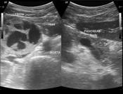 Pancreatic necros...