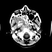 Angiofibroma