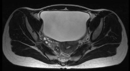 t2w axial pelvis ...