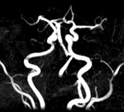 Vertebral artery ...