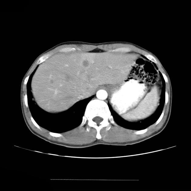 prostate sarcoma mri)