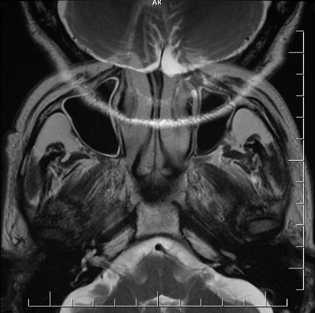 MRI artifacts | Radiology Reference Article | Radiopaedia org