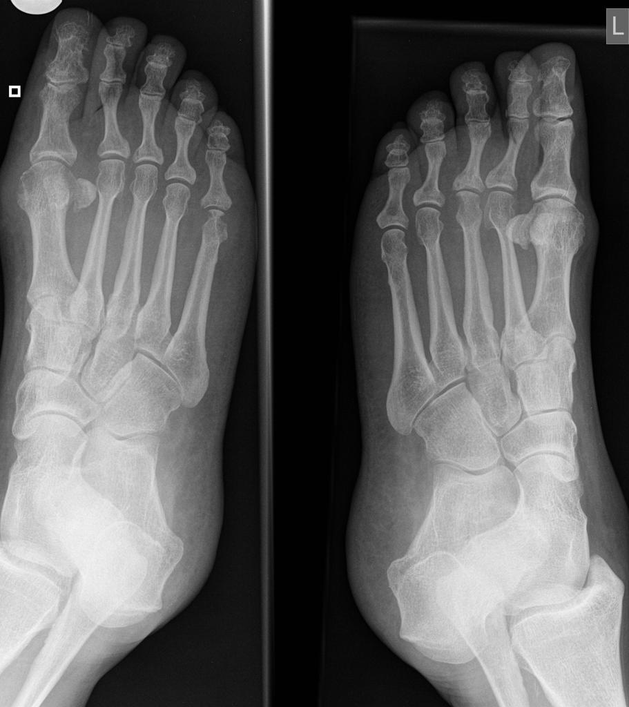 Rheumatoid arthritis , feet