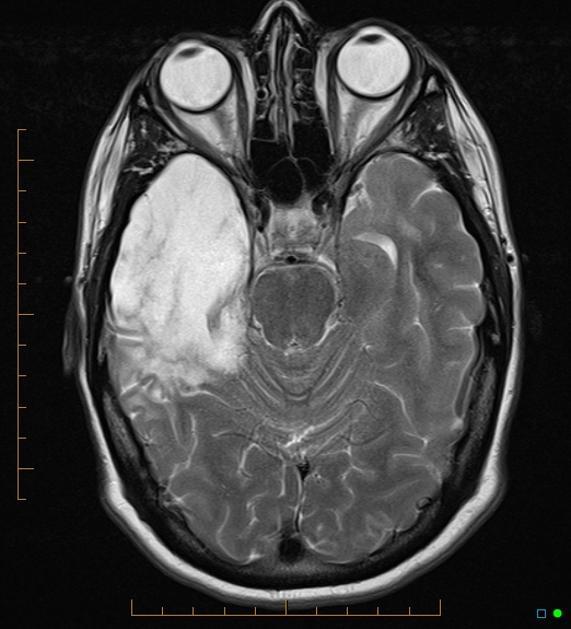 Temporal Lobe Atrophy Post Herpes Simplex Encephalitis Radiology Case Radiopaedia Org