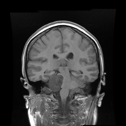 Blood mri t1 weighted 3D T1