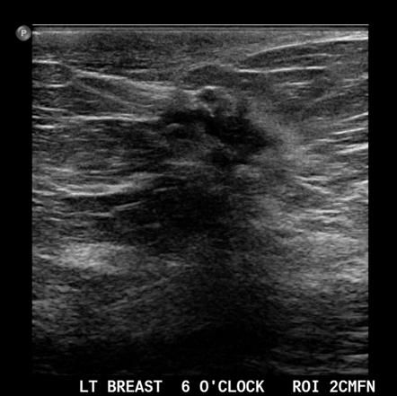 Breast Neoplasms Radiology Reference Article Radiopaedia Org