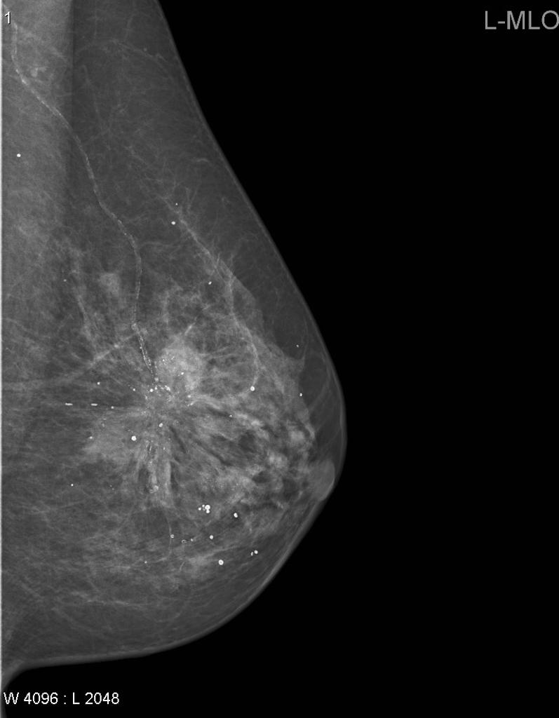Spiculated Breast Cancer Radiology Case Radiopaedia Org