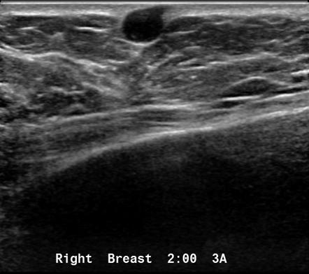 Breast Sebaceous Cyst Radiology Reference Article Radiopaedia Org