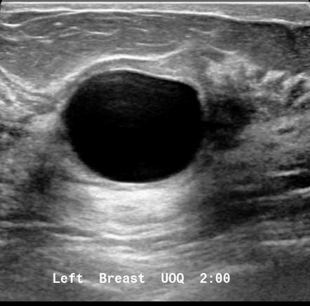 Simple Breast Cyst Radiology Reference Article Radiopaedia Org
