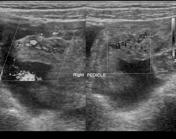 Ovarian torsion  ...
