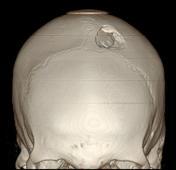 Depressed skull f...