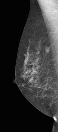 Third mammogram