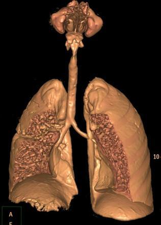Pulmonary Tuberculosis - Virtual Museum