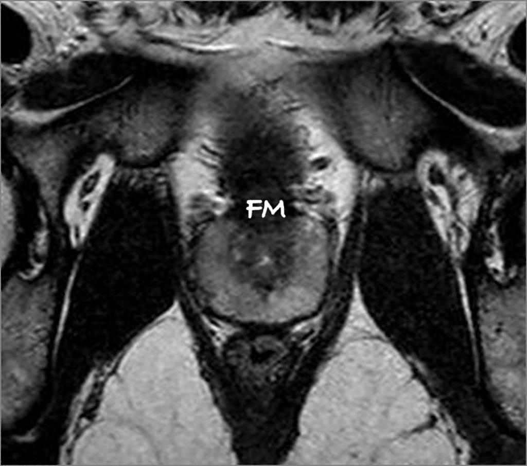 prostata anatomia mri