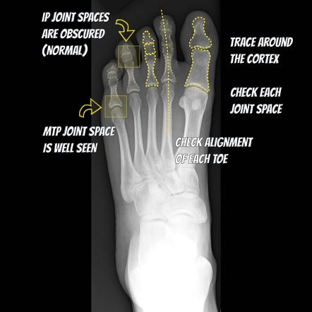 Foot Radiograph An Approach Radiology Reference Article Radiopaedia Org