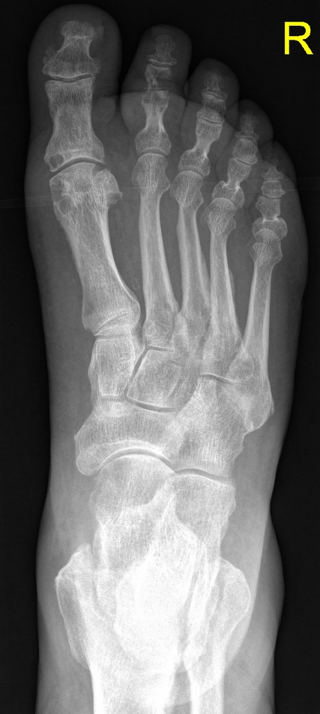 Gout Hand And Foot Changes Radiology Case Radiopaedia Org