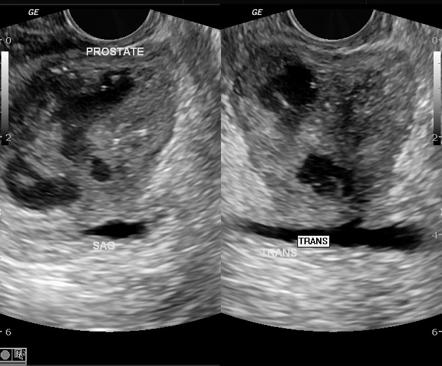 prostatitis on ct scan