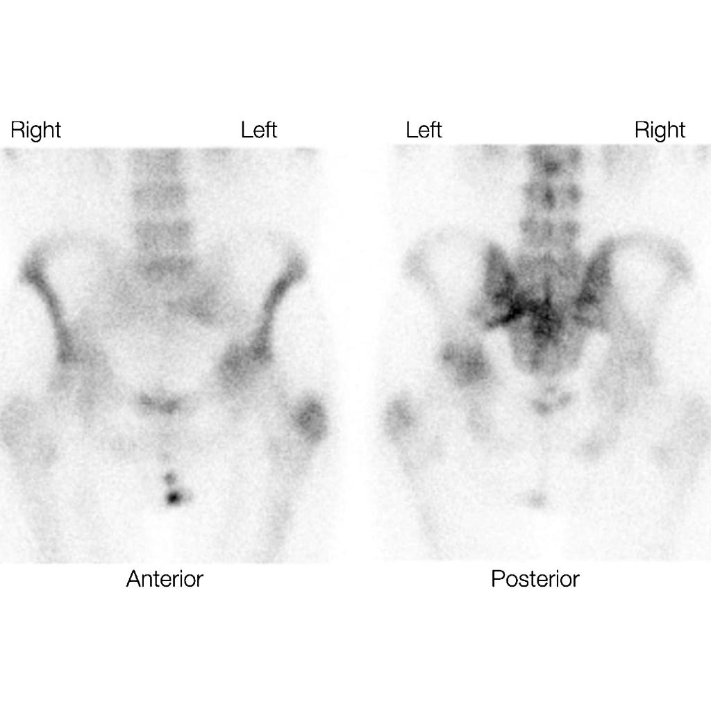 Sclerotic prostatitis