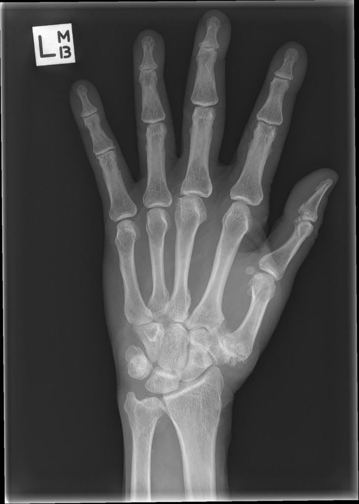 osteoarthritis first metacarpophalangeal joint)