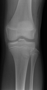 Tibial eminence f...