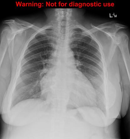 Oil Cyst Breast Radiology Reference Article Radiopaedia Org